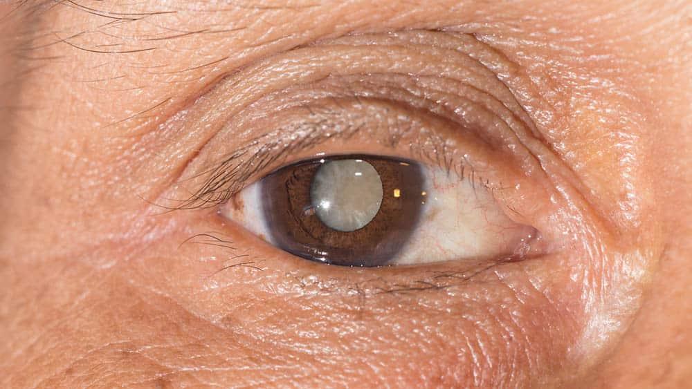 olhos com catarata
