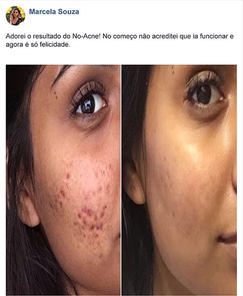No Acne